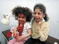 Παιδιά του ιράκ μετά από βομβιστική